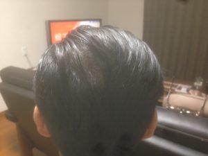若干脱毛状態から抜け出してきたように見える画像